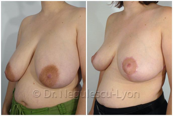 La durée de service implanta les poitrines